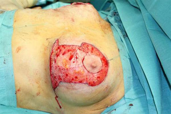 Explantation mit Straffung