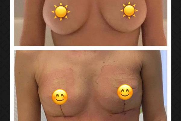 oben mit Implantaten/unten nach Explantation mit Straffung