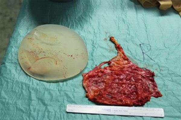 Implantat und Kapsel