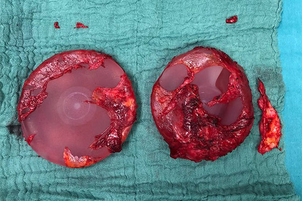 Implantate nach Entfernung, nicht sauber En bloc