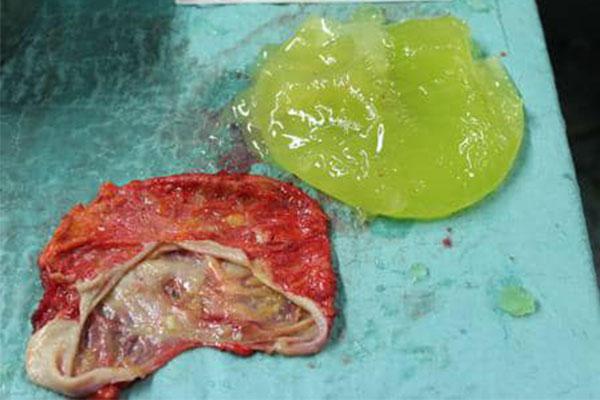 Kapsel und rupturiertes Implantat